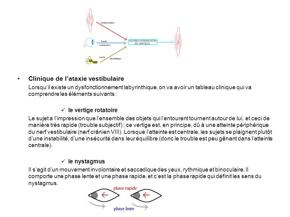 Clinique de lataxie vestibulaire Lorsquil existe un dysfonctionnement labyrinthique, on va avoir un tableau clinique qui va comprendre les éléments su