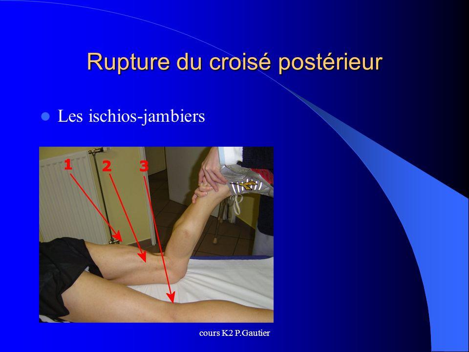 cours K2 P.Gautier Rupture du croisé postérieur Les ischios-jambiers