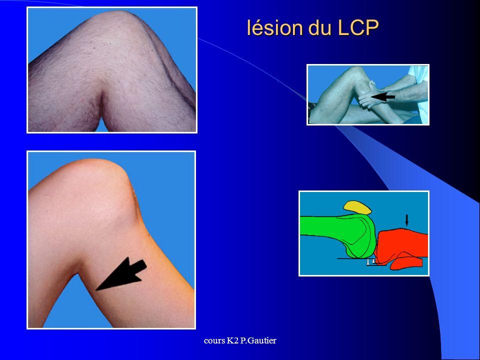 cours K2 P.Gautier lésion du LCP