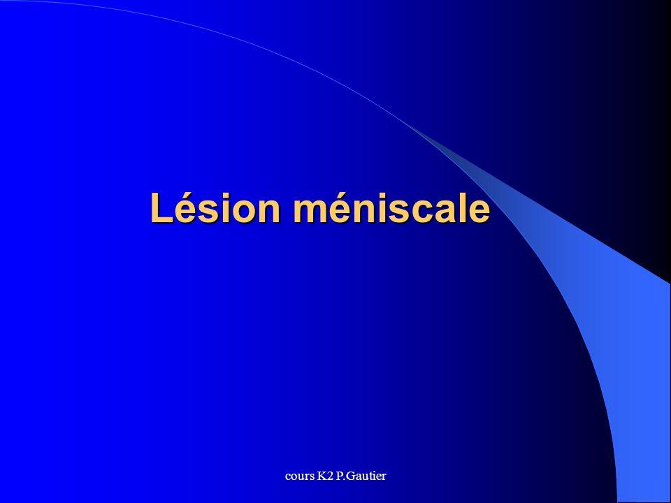 cours K2 P.Gautier Lésion méniscale