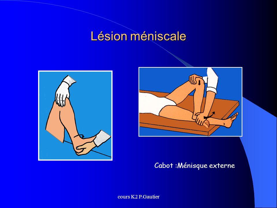 cours K2 P.Gautier Lésion méniscale Cabot :Ménisque externe