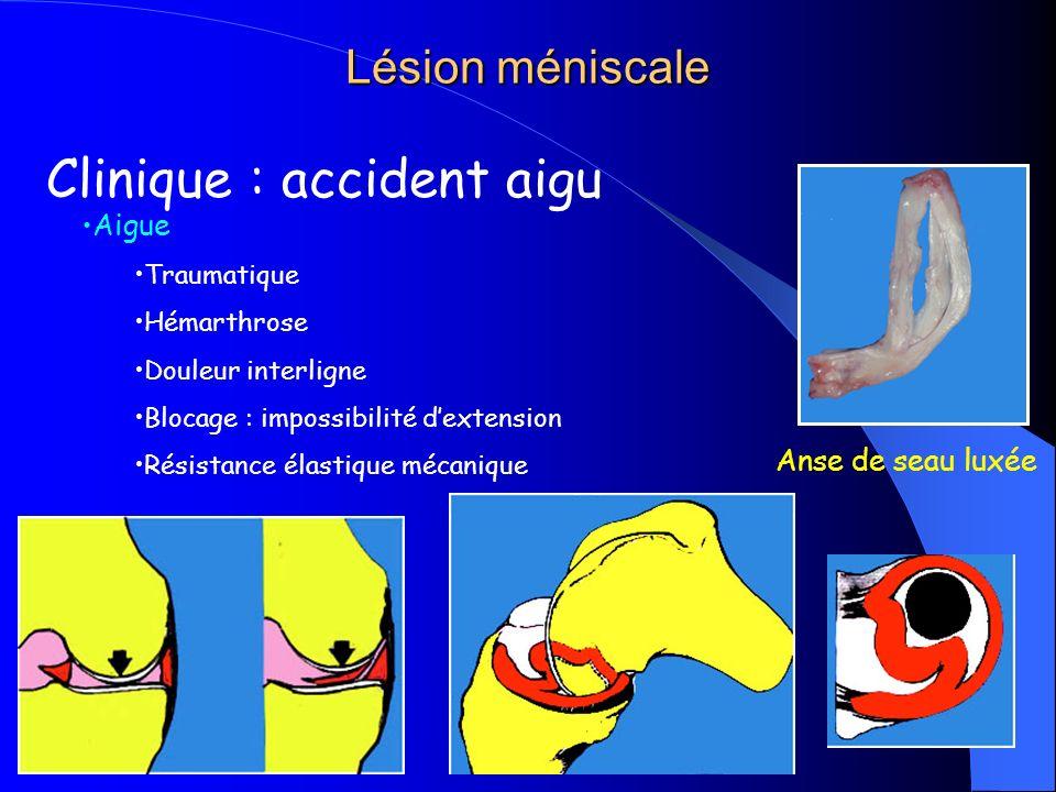 cours K2 P.Gautier Lésion méniscale Clinique : accident aigu Aigue Traumatique Hémarthrose Douleur interligne Blocage : impossibilité dextension Résis