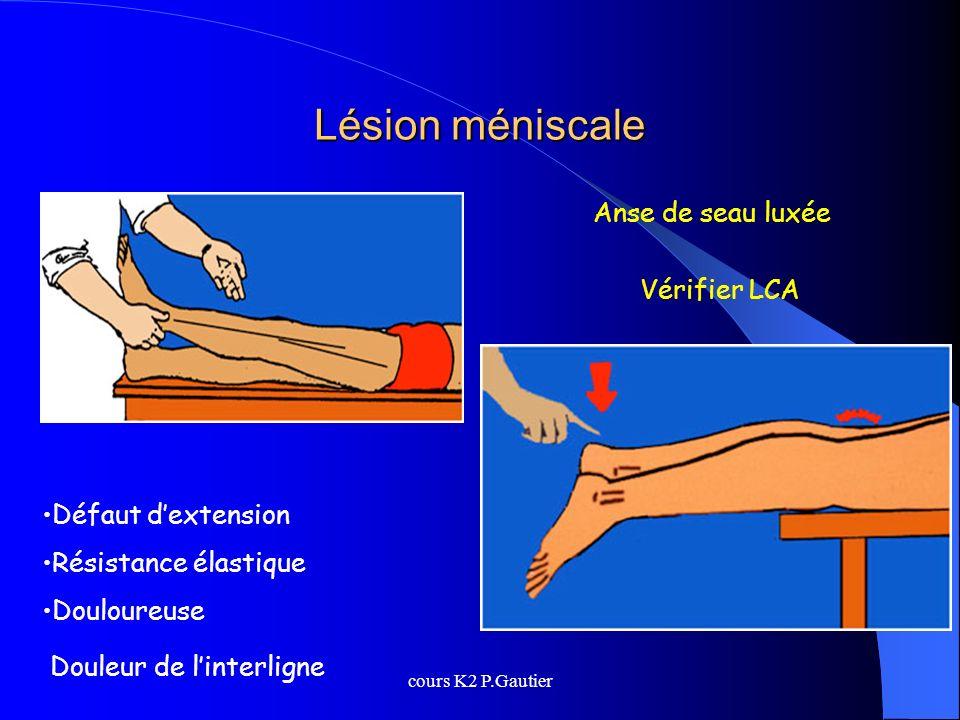 cours K2 P.Gautier Lésion méniscale Anse de seau luxée Vérifier LCA Défaut dextension Résistance élastique Douloureuse Douleur de linterligne