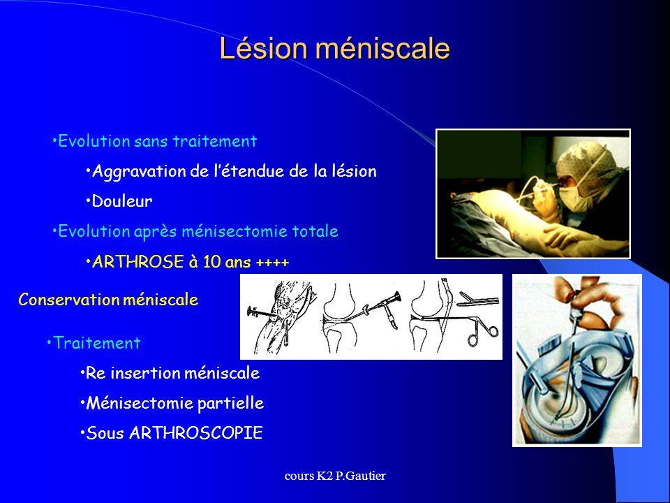 cours K2 P.Gautier Lésion méniscale Evolution sans traitement Aggravation de létendue de la lésion Douleur Evolution après ménisectomie totale ARTHROS