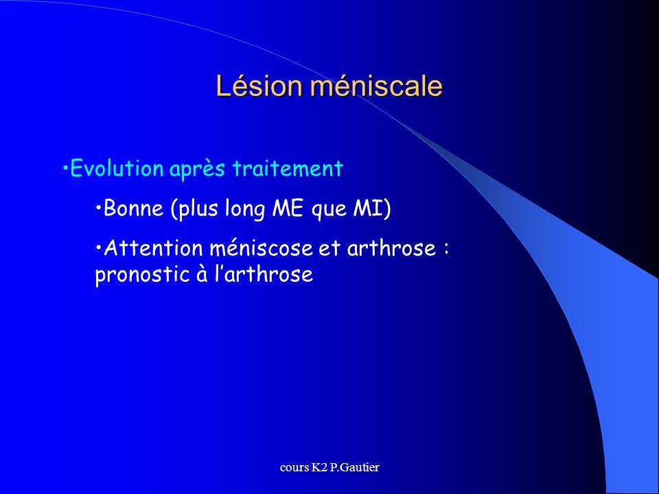 cours K2 P.Gautier Lésion méniscale Evolution après traitement Bonne (plus long ME que MI) Attention méniscose et arthrose : pronostic à larthrose