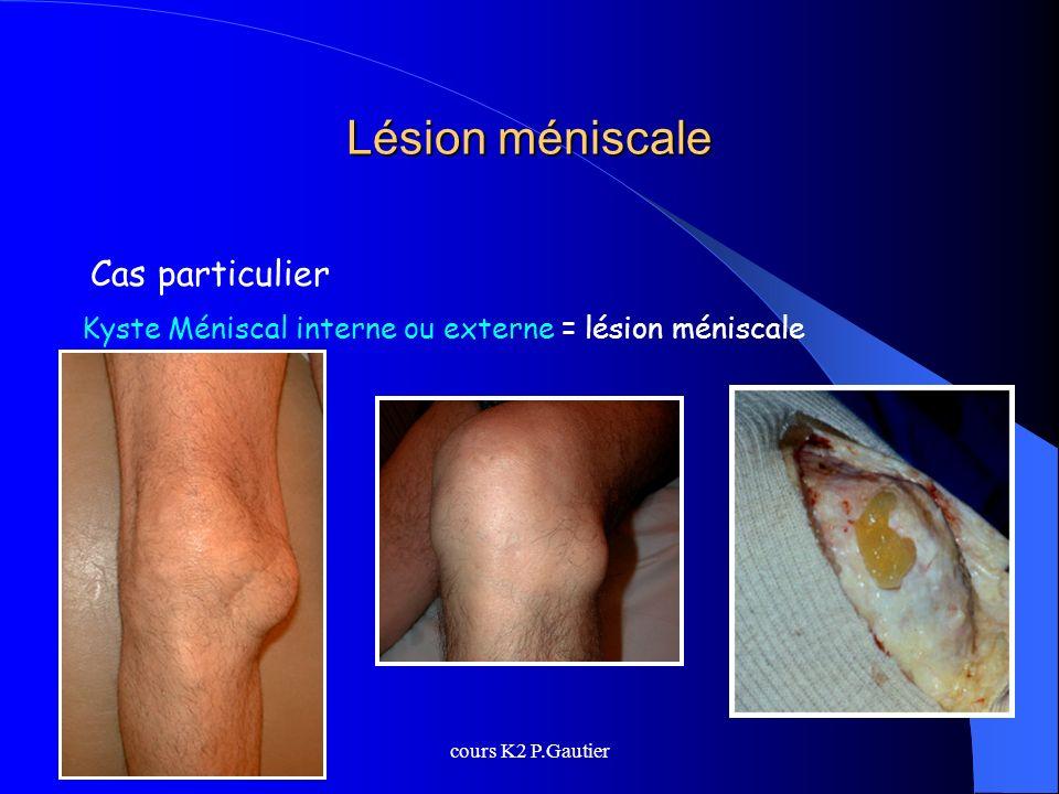 cours K2 P.Gautier Lésion méniscale Cas particulier Kyste Méniscal interne ou externe = lésion méniscale