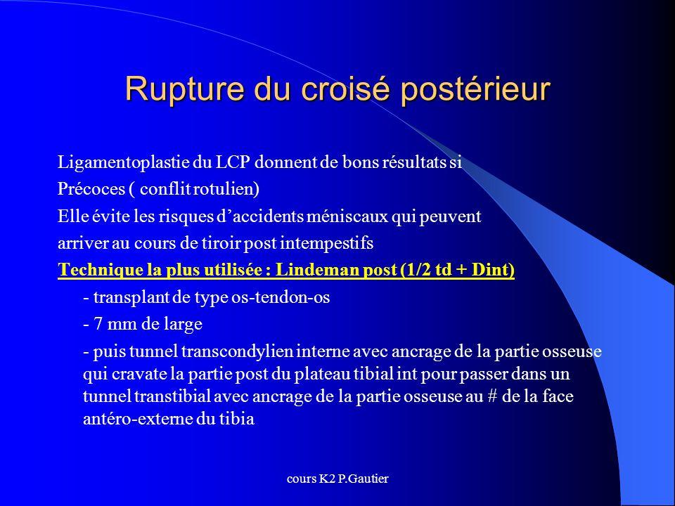 cours K2 P.Gautier Rupture du croisé postérieur Ligamentoplastie du LCP donnent de bons résultats si Précoces ( conflit rotulien) Elle évite les risqu