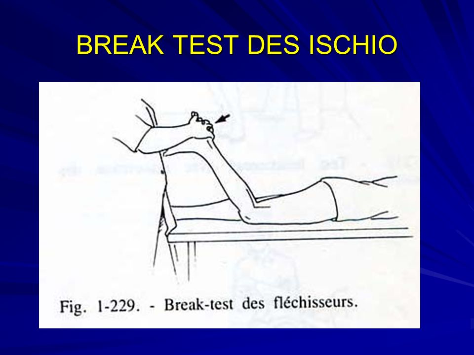 BREAK TEST DES ISCHIO