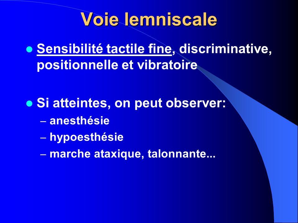 Voie lemniscale Sensibilité tactile fine, discriminative, positionnelle et vibratoire Si atteintes, on peut observer: – anesthésie – hypoesthésie – ma