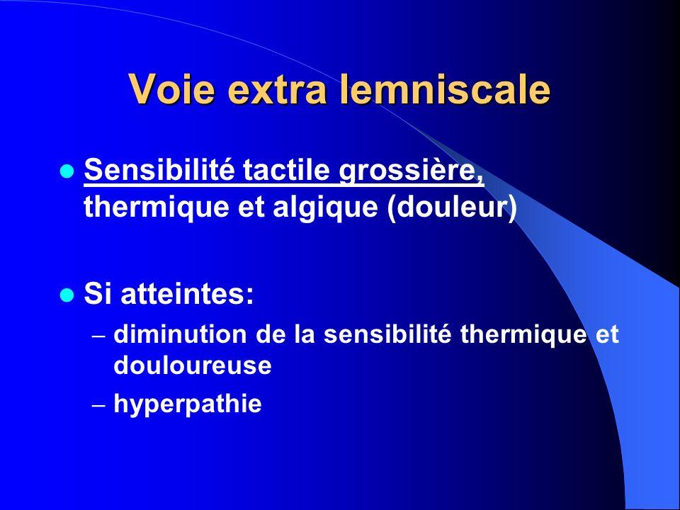 Voie extra lemniscale Sensibilité tactile grossière, thermique et algique (douleur) Si atteintes: – diminution de la sensibilité thermique et douloure