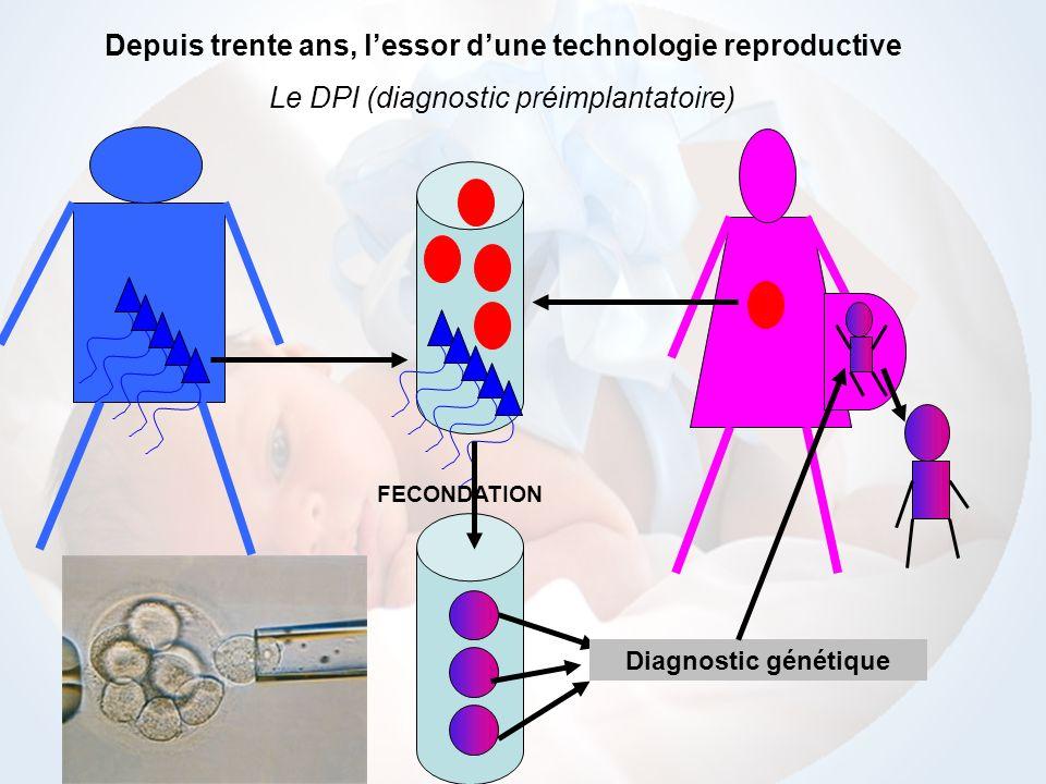 FECONDATION Depuis trente ans, lessor dune technologie reproductive Le DPI (diagnostic préimplantatoire) Diagnostic génétique