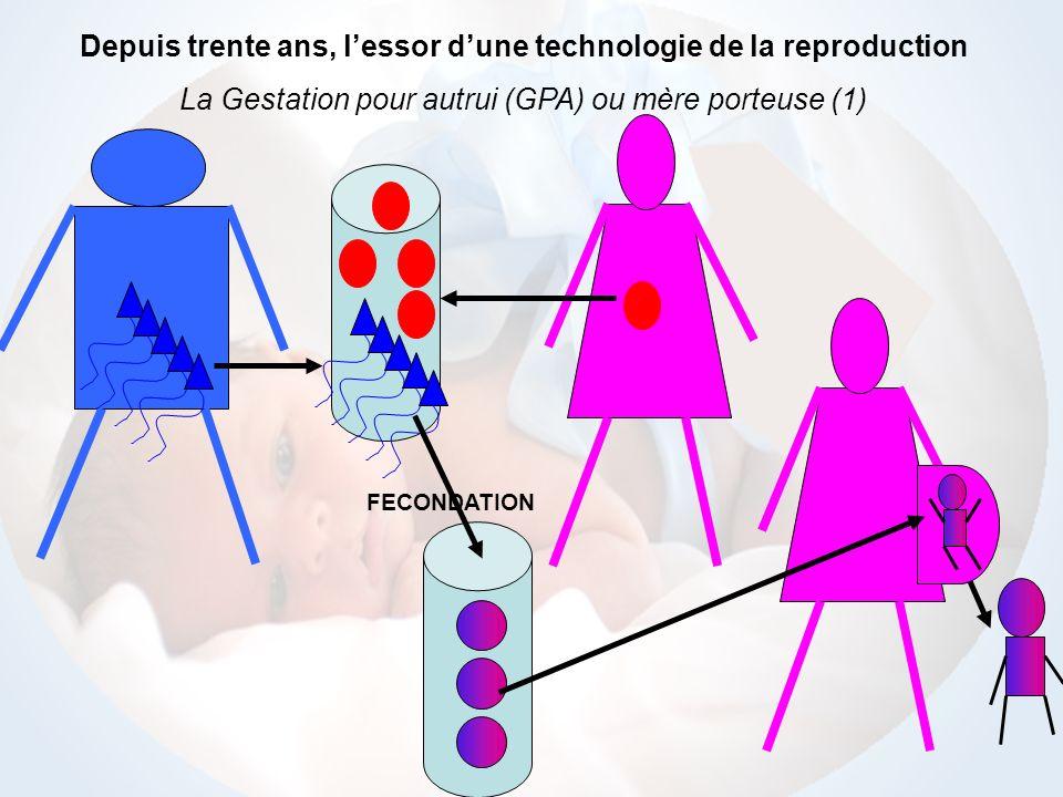 FECONDATION Depuis trente ans, lessor dune technologie de la reproduction La Gestation pour autrui (GPA) ou mère porteuse (2)