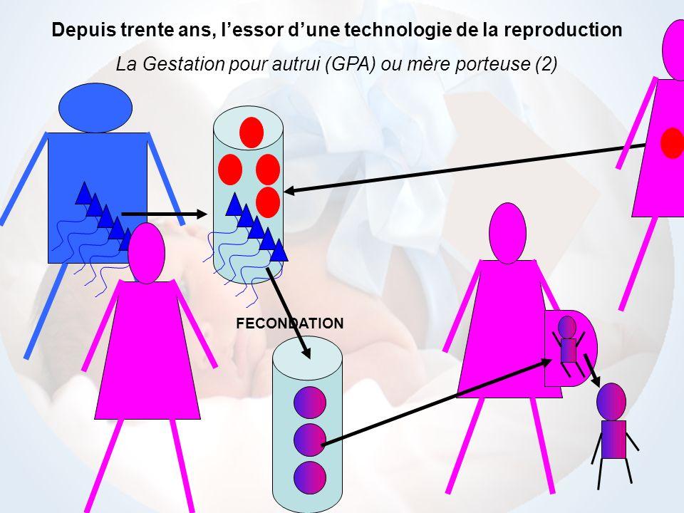 FECONDATION Depuis trente ans, lessor dune technologie reproductive Le don dembryon