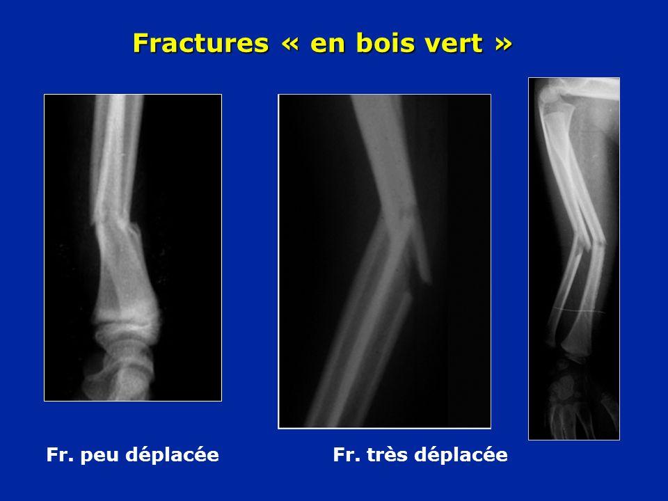 Fractures « en bois vert » Fr. peu déplacée Fr. très déplacée