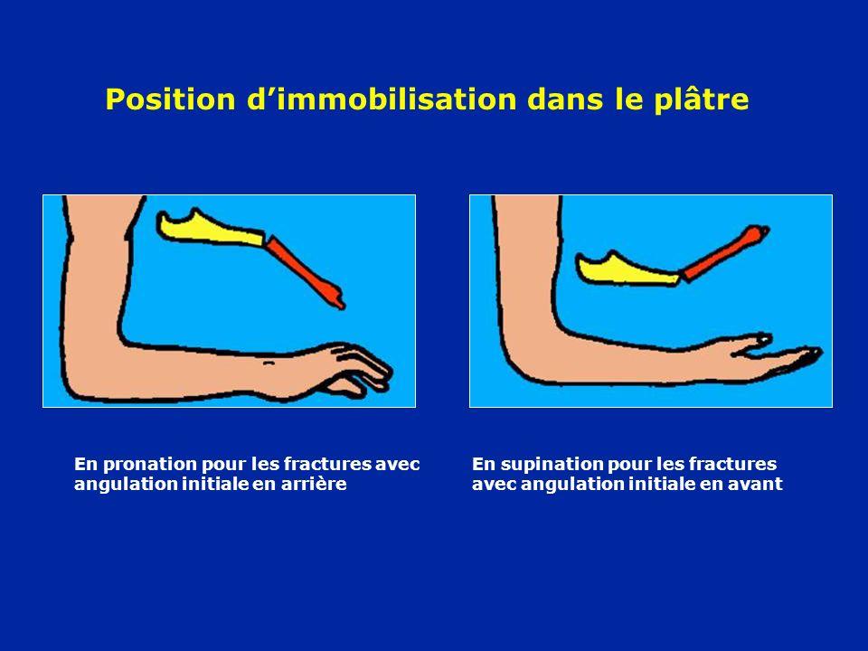 Position dimmobilisation dans le plâtre En pronation pour les fractures avec angulation initiale en arrière En supination pour les fractures avec angu