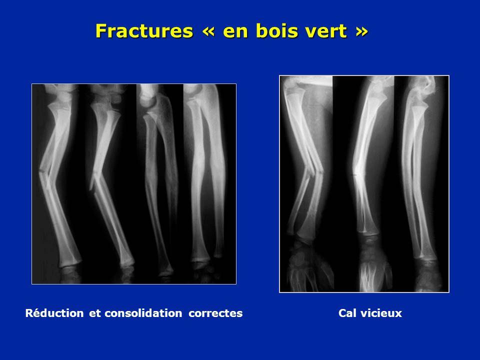 Réduction et consolidation correctes Cal vicieux Fractures « en bois vert »