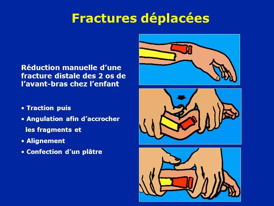 Réduction manuelle dune fracture distale des 2 os de lavant-bras chez lenfant Traction puis Angulation afin daccrocher les fragments et Alignement Con