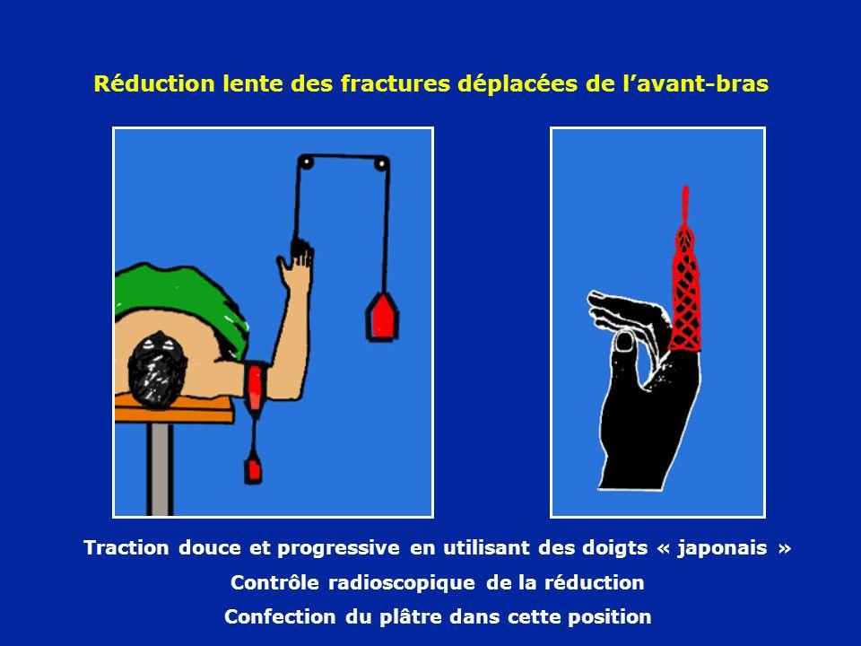 Réduction lente des fractures déplacées de lavant-bras Traction douce et progressive en utilisant des doigts « japonais » Contrôle radioscopique de la