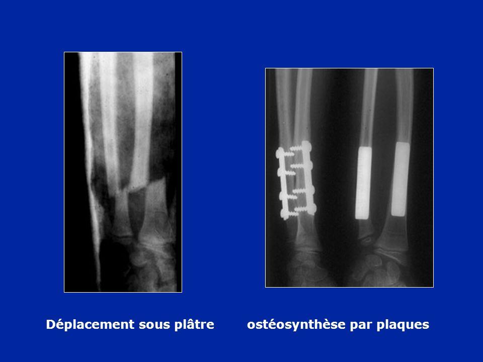 Déplacement sous plâtreostéosynthèse par plaques