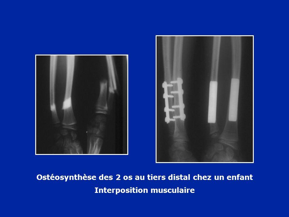Ostéosynthèse des 2 os au tiers distal chez un enfant Interposition musculaire
