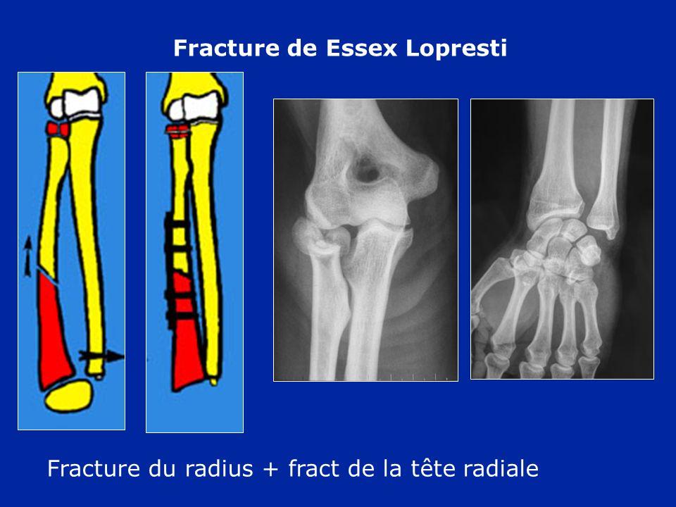 Fracture de Essex Lopresti Fracture du radius + fract de la tête radiale