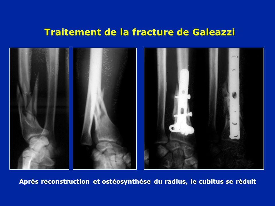 Traitement de la fracture de Galeazzi Après reconstruction et ostéosynthèse du radius, le cubitus se réduit