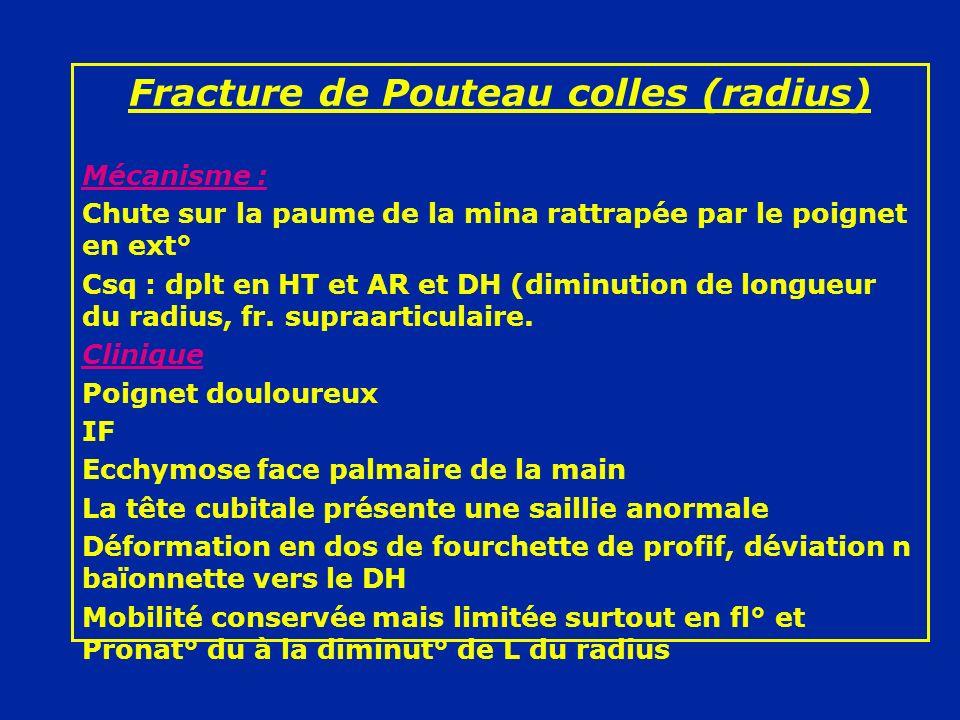 Fracture de Pouteau colles (radius) Mécanisme : Chute sur la paume de la mina rattrapée par le poignet en ext° Csq : dplt en HT et AR et DH (diminutio