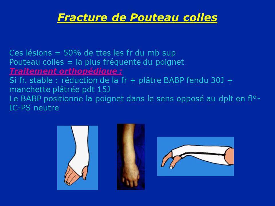 Fracture de Pouteau colles Ces lésions = 50% de ttes les fr du mb sup Pouteau colles = la plus fréquente du poignet Traitement orthopédique : Si fr. s