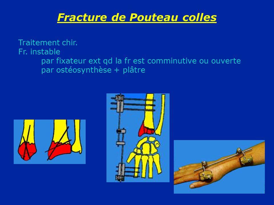 Fracture de Pouteau colles Traitement chir. Fr. instable par fixateur ext qd la fr est comminutive ou ouverte par ostéosynthèse + plâtre