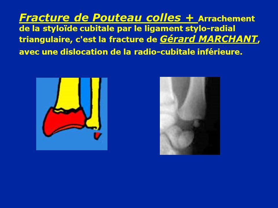 Fracture de Pouteau colles + Arrachement de la styloïde cubitale par le ligament stylo-radial triangulaire, c'est la fracture de Gérard MARCHANT, avec