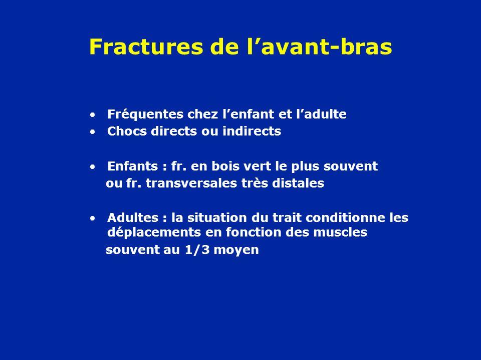 Fractures de lavant-bras Fréquentes chez lenfant et ladulte Chocs directs ou indirects Enfants : fr. en bois vert le plus souvent ou fr. transversales