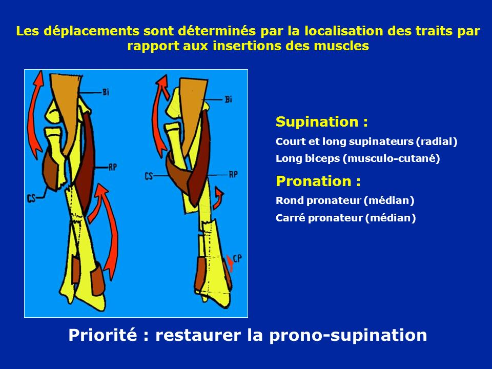 Priorité : restaurer la prono-supination Les déplacements sont déterminés par la localisation des traits par rapport aux insertions des muscles Supina