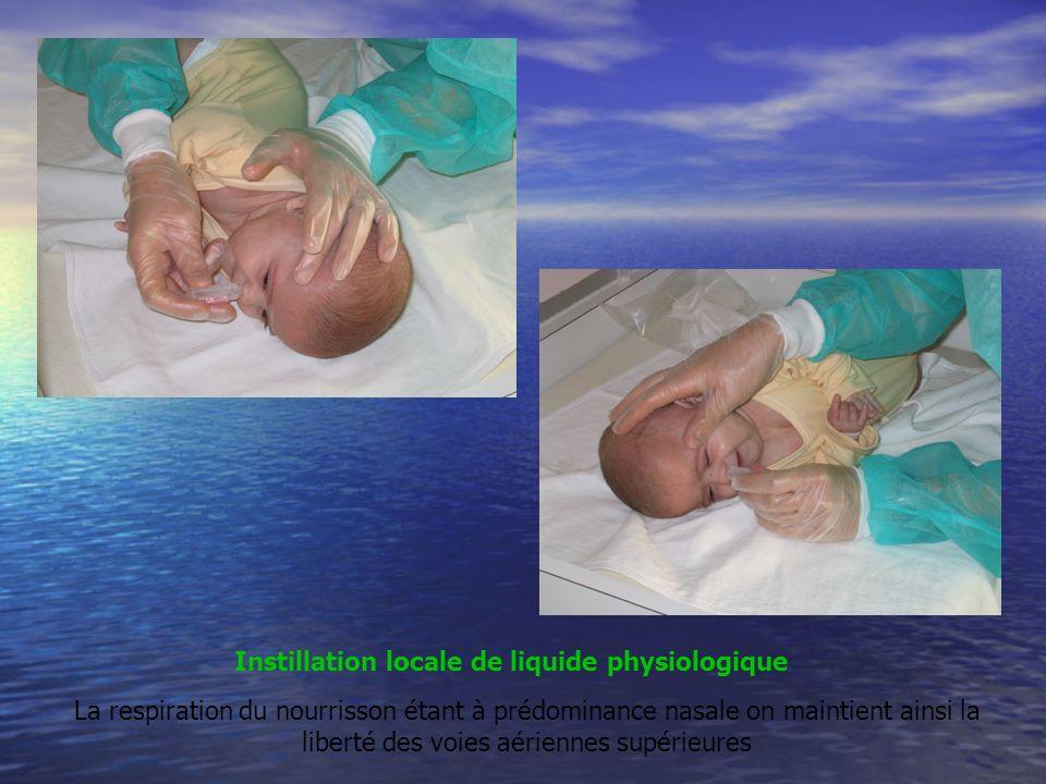 Instillation locale de liquide physiologique La respiration du nourrisson étant à prédominance nasale on maintient ainsi la liberté des voies aériennes supérieures