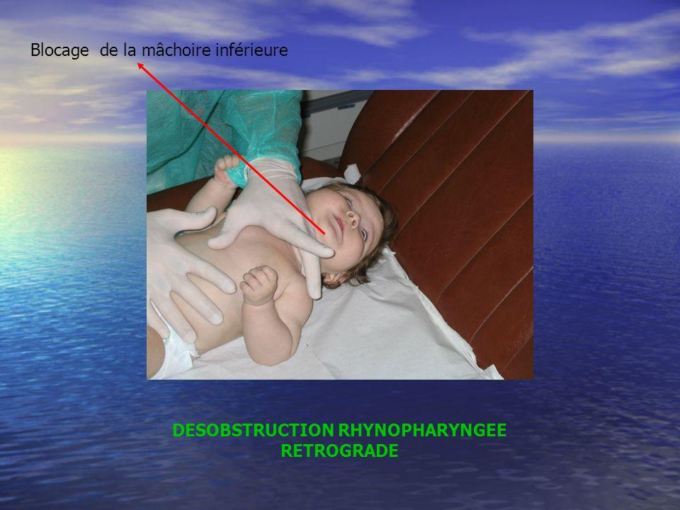 DESOBSTRUCTION RHYNOPHARYNGEE RETROGRADE Blocage de la mâchoire inférieure