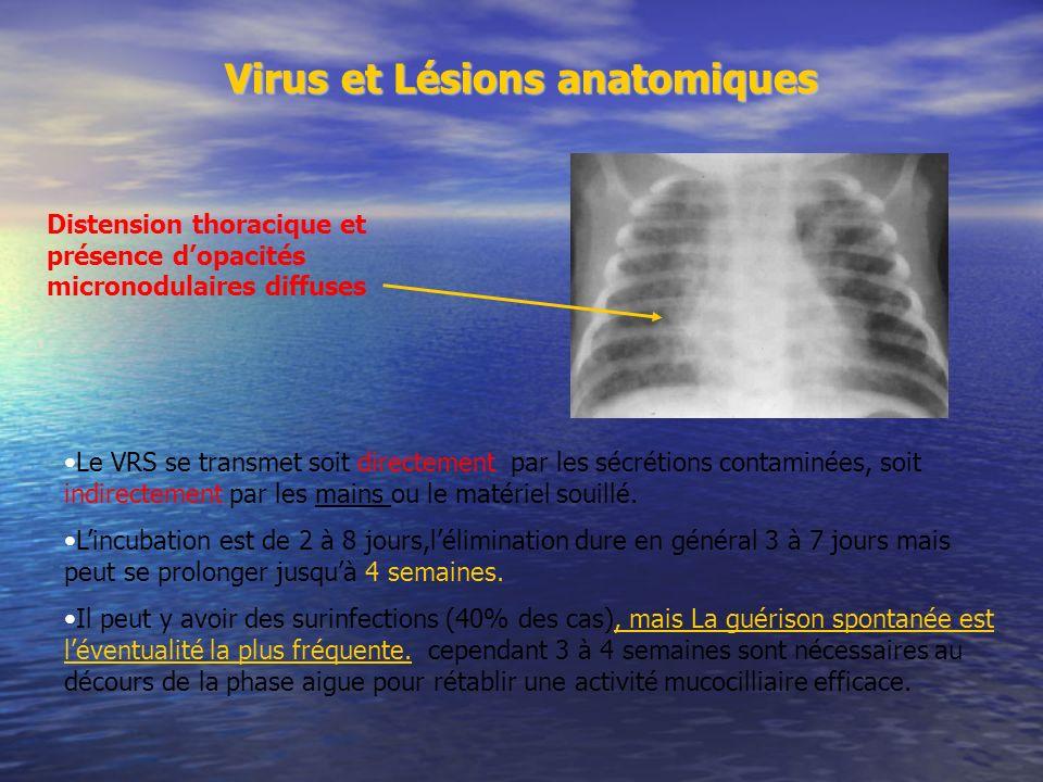 Virus et Lésions anatomiques Le VRS se transmet soit directement par les sécrétions contaminées, soit indirectement par les mains ou le matériel souillé.