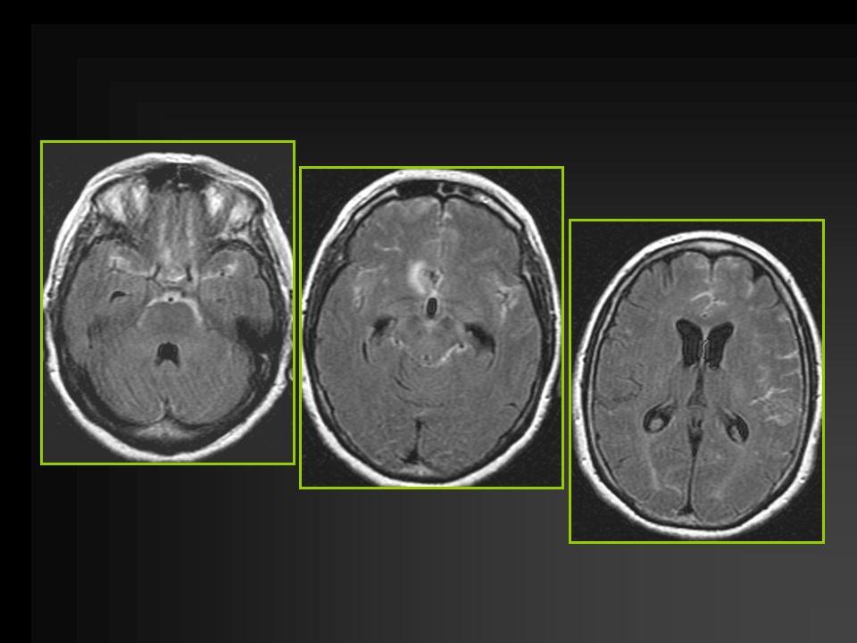 Diagnostic (4) HSA angiographie cérébrale –Recherche anévrisme –Décision du traitement (endovasculaire/chirurgical) Si angio négative la refaire vers J10