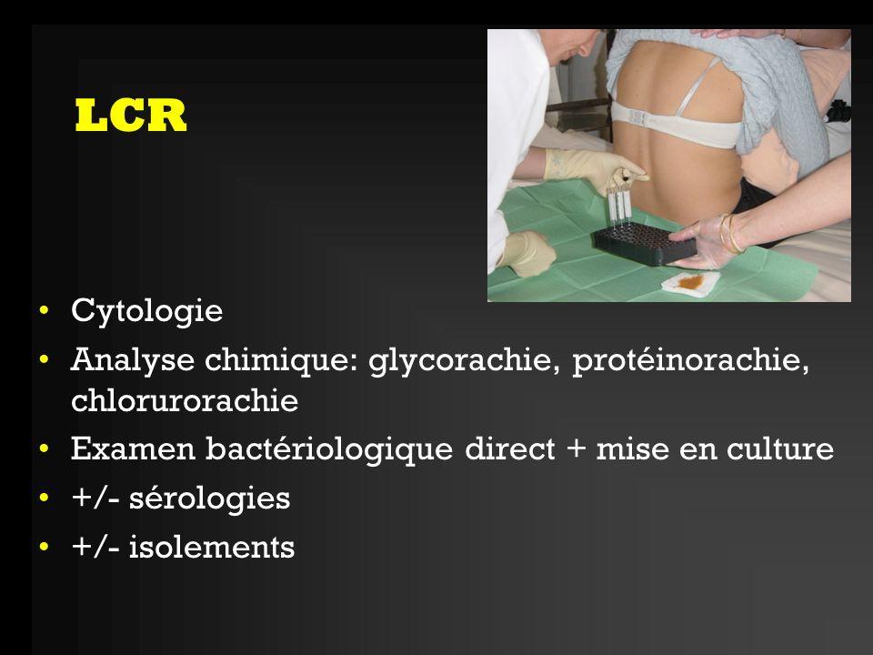 LCR Liquide hémorragique Hémorragie méningée Méningites bactériennes, tuberculeuse Méningo-E herpétique Liquide clair Composition normale: méningisme Pléïocytose (>10 elt/mm3) avec majorité de lymphocytes (>50%): -normoglycorachie, protéinorachie < 1g = virale -Hypoglycorachie, protéinorachie > 1gr, hypochlorurorachie: tuberculose, listériose -Méningites bactériennes, parasitaires, fungiques, carcinomateuse Liquide trouble Méningite bactérienne Pléiocytose avec majorité de PNN, protéinorachie > 1g