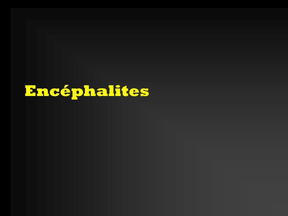 Clinique: $ encéphalitique Tbles de la conscience Crises épileptiques partielles ou généralisées, parfois état de mal (péjoratif) Signes de focalisation: mono ou hémiplégie, paralysie des nerfs crâniens, mouvements anormaux, aphasie, … Tbles du comportements Tbles neuro-végétatifs: irrégularité du pouls, de la TA, de la température +/- Syndrome méningé (méningo-encéphalite) Signes de gravité (idem que méningites)