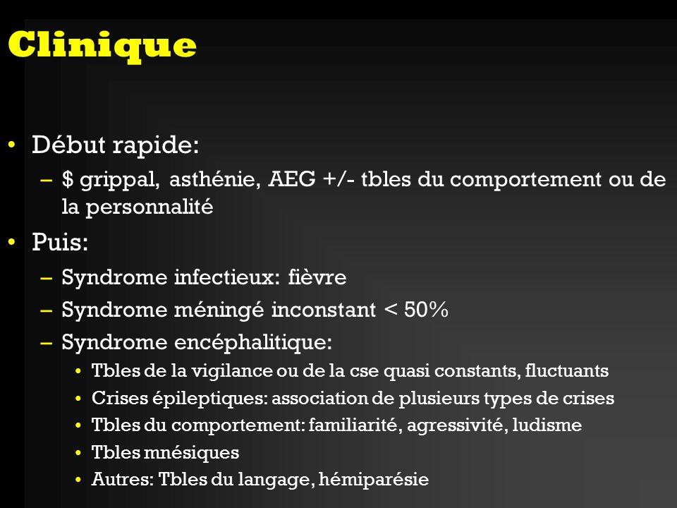 Diagnostic 1.TDM cérébrale 2.LCR: - Hypercytose à prédominance lymphocytaire - hyperprotéinorachie modérée < 1g - Faiblement hémorragique - Glycorachie normale - PCR herpès 3.IRM 4.EEG