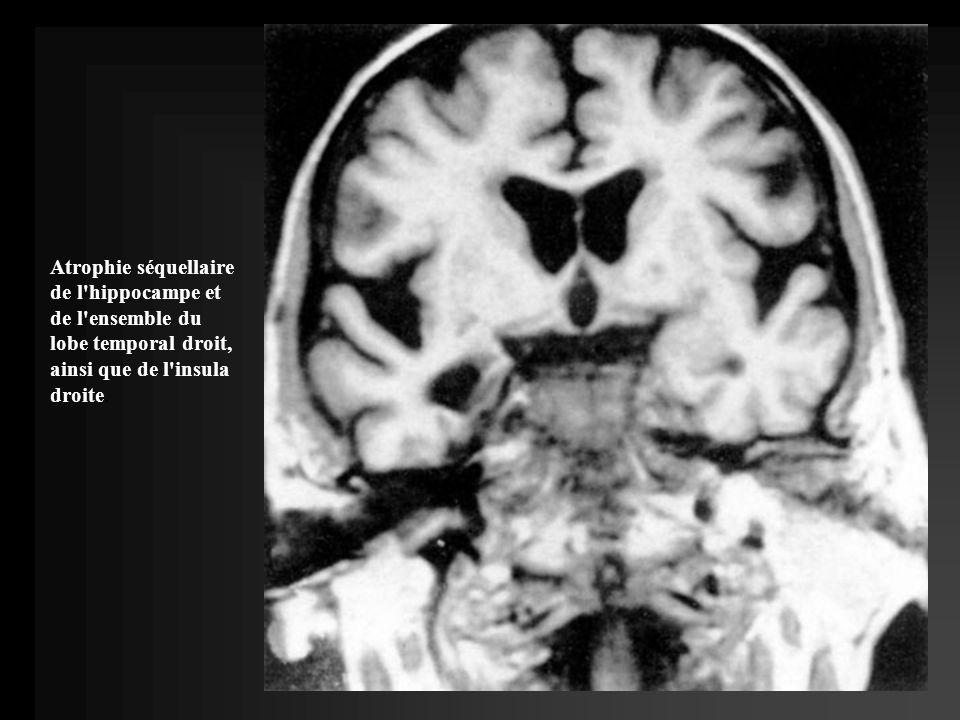 Séquelle d une méningoencéphalite herpétique : atrophie sélective du noyau amygdalien gauche.