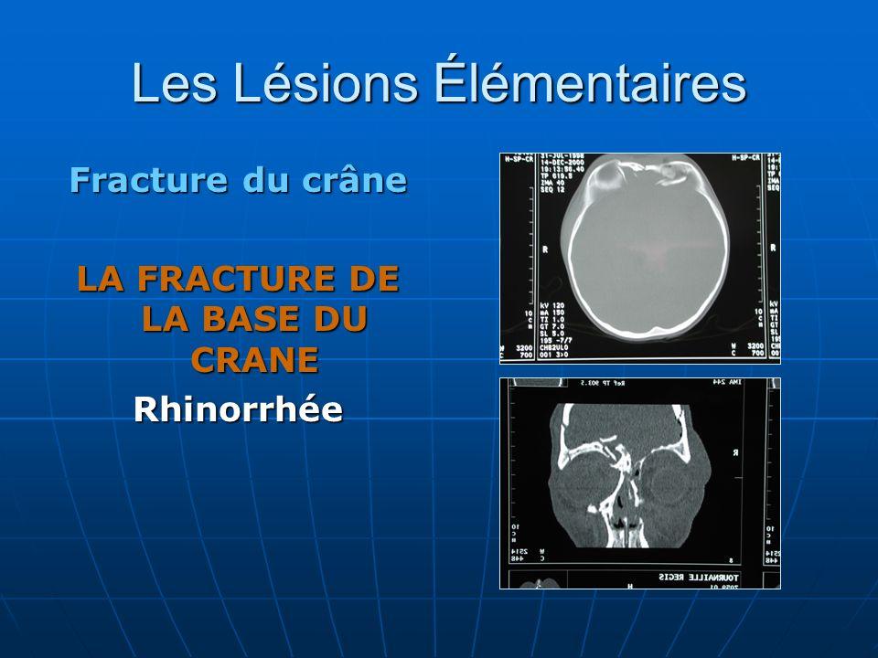 Les Lésions Élémentaires Fracture du crâne LA FRACTURE DE LA BASE DU CRANE Rhinorrhée