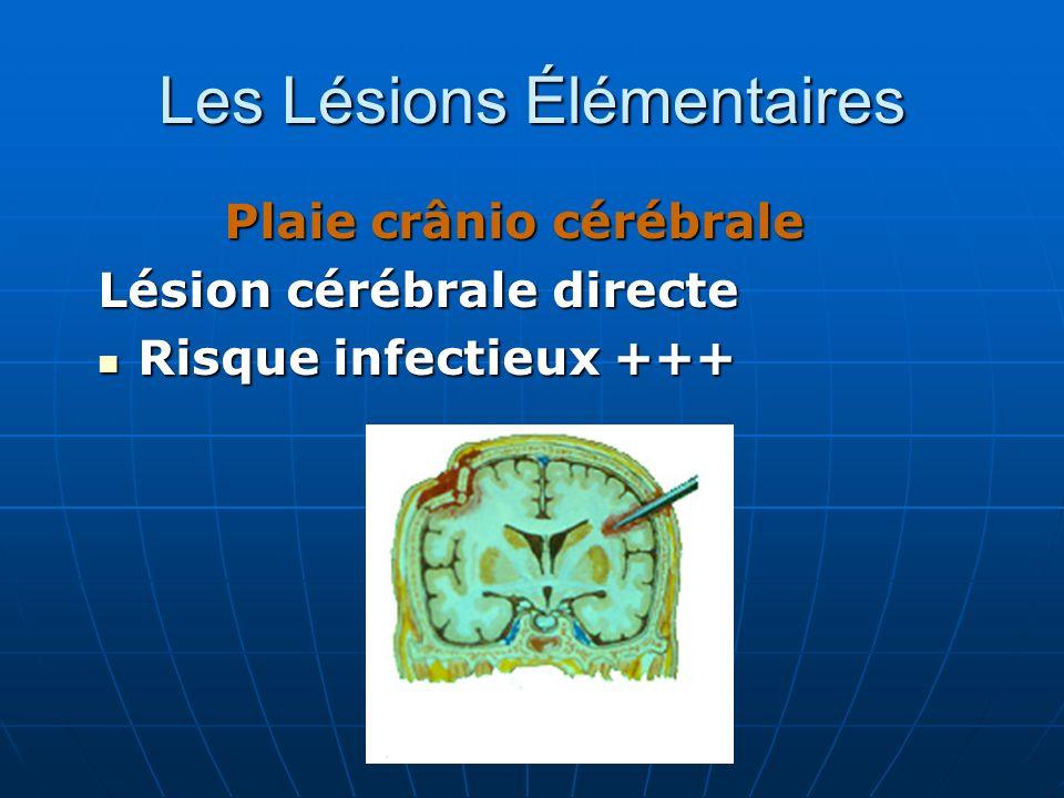 Plaie crânio cérébrale Lésion cérébrale directe Risque infectieux +++ Risque infectieux +++