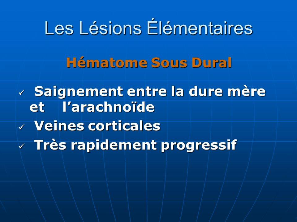 Les Lésions Élémentaires Hématome Sous Dural Saignement entre la dure mère et larachnoïde Saignement entre la dure mère et larachnoïde Veines cortical