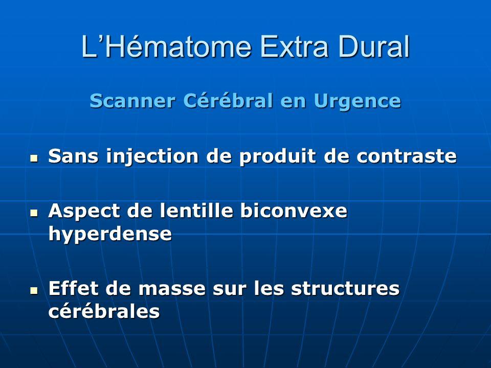 LHématome Extra Dural Scanner Cérébral en Urgence Sans injection de produit de contraste Sans injection de produit de contraste Aspect de lentille bic