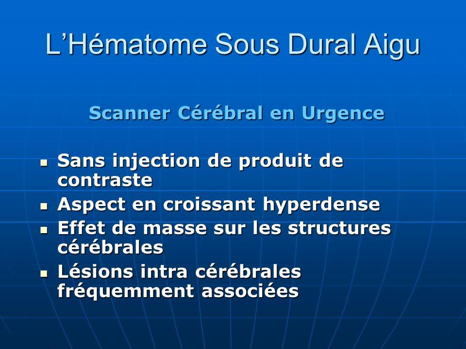LHématome Sous Dural Aigu Scanner Cérébral en Urgence Sans injection de produit de contraste Sans injection de produit de contraste Aspect en croissan