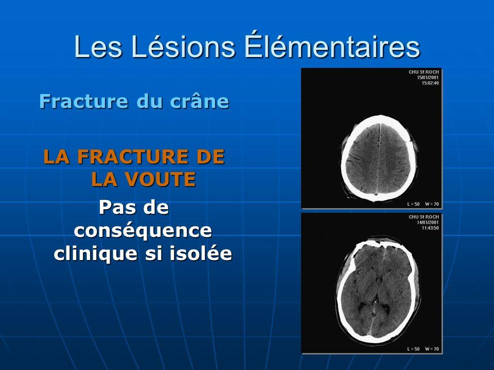 Les Lésions Élémentaires Fracture du crâne LA FRACTURE DE LA VOUTE Pas de conséquence clinique si isolée
