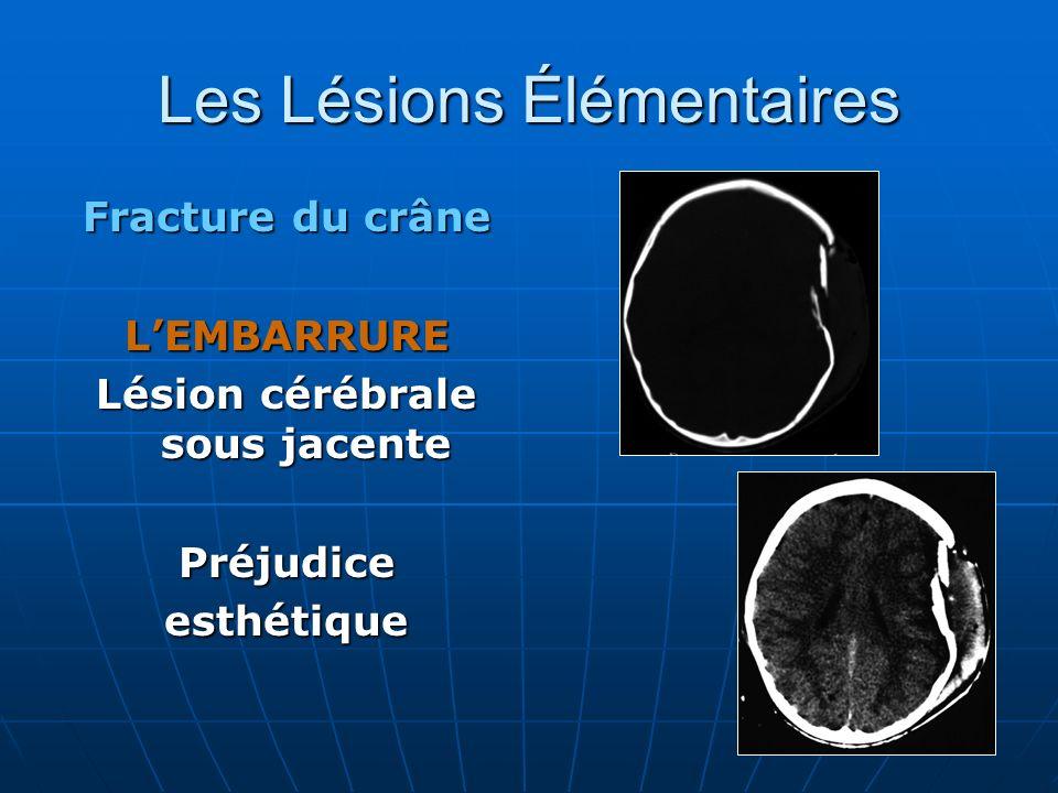 Les Lésions Élémentaires Fracture du crâne LEMBARRURE Lésion cérébrale sous jacente Préjudiceesthétique