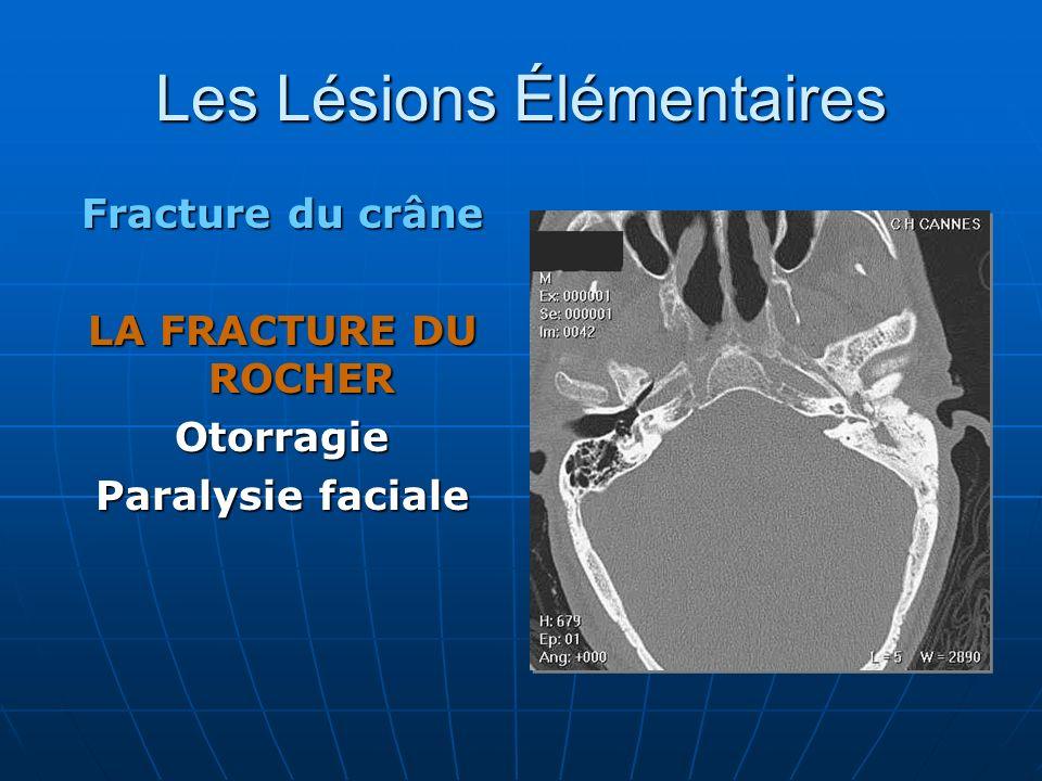 Les Lésions Élémentaires Fracture du crâne LA FRACTURE DU ROCHER Otorragie Paralysie faciale