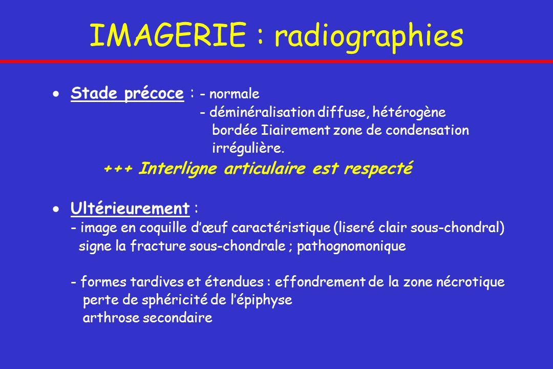 IMAGERIE : radiographies Stade précoce : - normale - déminéralisation diffuse, hétérogène bordée Iiairement zone de condensation irrégulière. +++ Inte