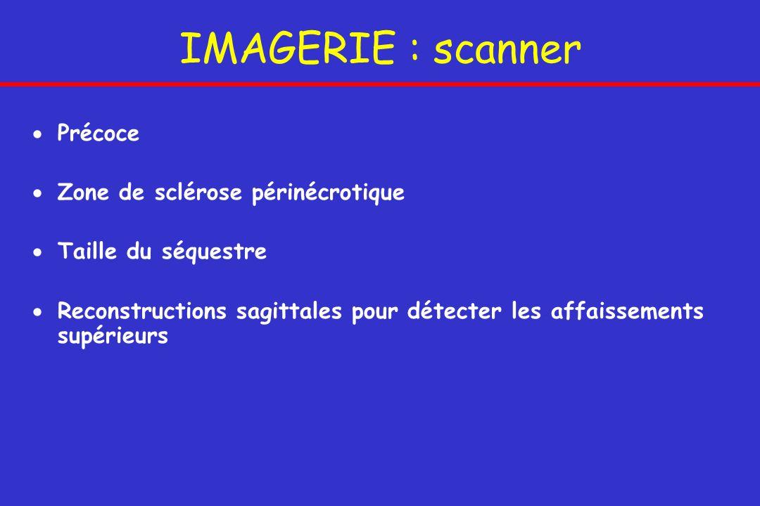 IMAGERIE : scanner Précoce Zone de sclérose périnécrotique Taille du séquestre Reconstructions sagittales pour détecter les affaissements supérieurs